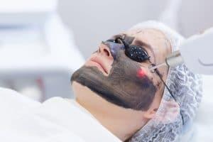 טיפולי שיפור במרקם העור וטיפולי נקבוביות פתוחות בעזרת לייזר